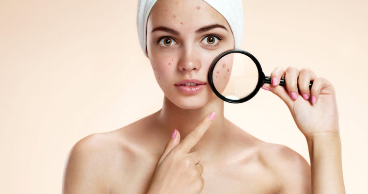 How Can You Prevent An Acne Breakout?